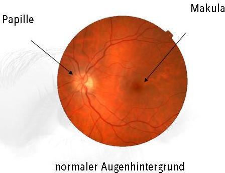mueller_welt_kontaktlinsen_grafik_frueherkennung