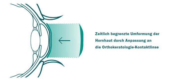 orthokeratologie_auge