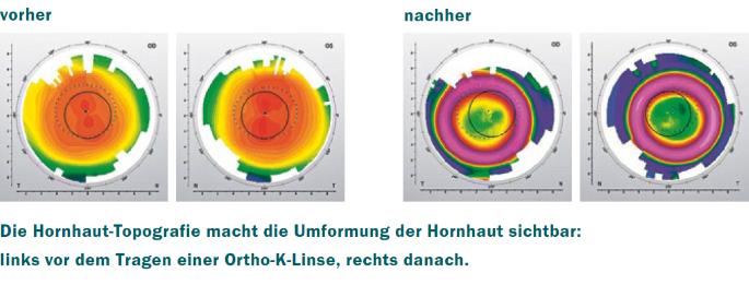 orthokeratologie_hornhaut-topografie