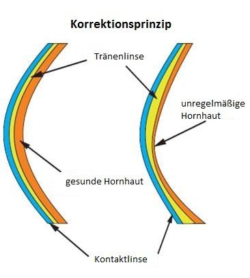 mueller_welt_kontaktlinsen_grafik_keratokonus_korrektionsprinzip