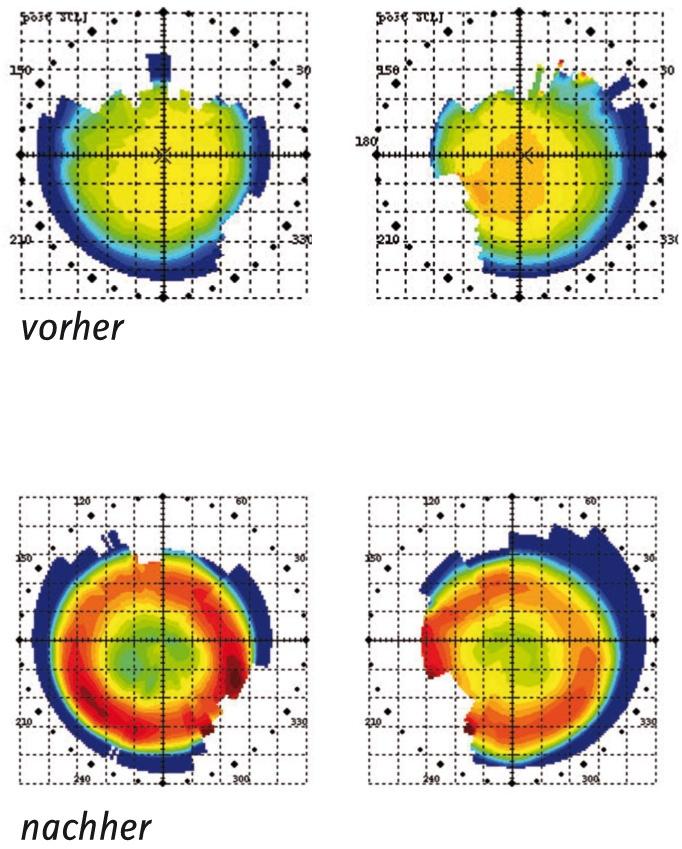 mueller_welt_kontaktlinsen_grafik_orthokeratologie