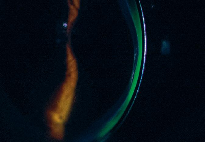 Traenenlinse mit Fluo_dawi_rgb