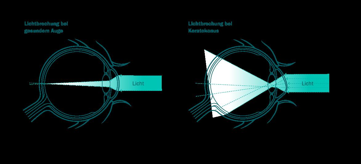 grafik1_keratokonus1_RGB_dawi